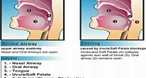 Help-to-Quit-Snoring-Tips-and-Home-Remedies-for-Snoring