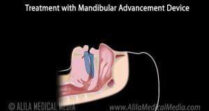 Snoring-Sleep-Apnea-and-Treatment-with-a-Mandibular-Advancement-Device-Animation.