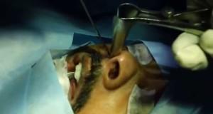 Treating-Snoring-and-Sleep-Apnea-in-Military-Force-Dr.K.O.Paulose-FRCS